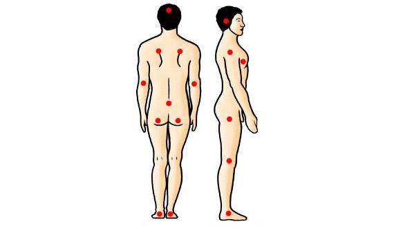 Dekubitus, kako nastaje i lečenje